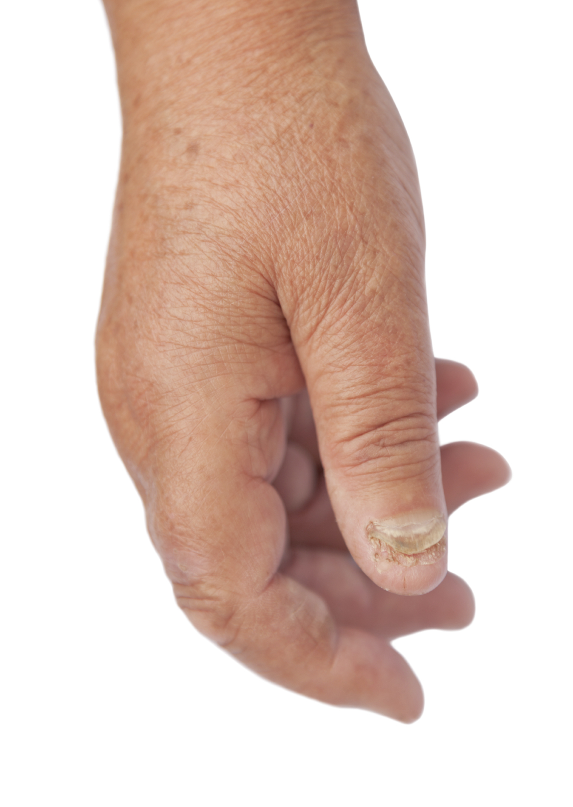 How Do You Know If You Have A Nail Fungal Infection?
