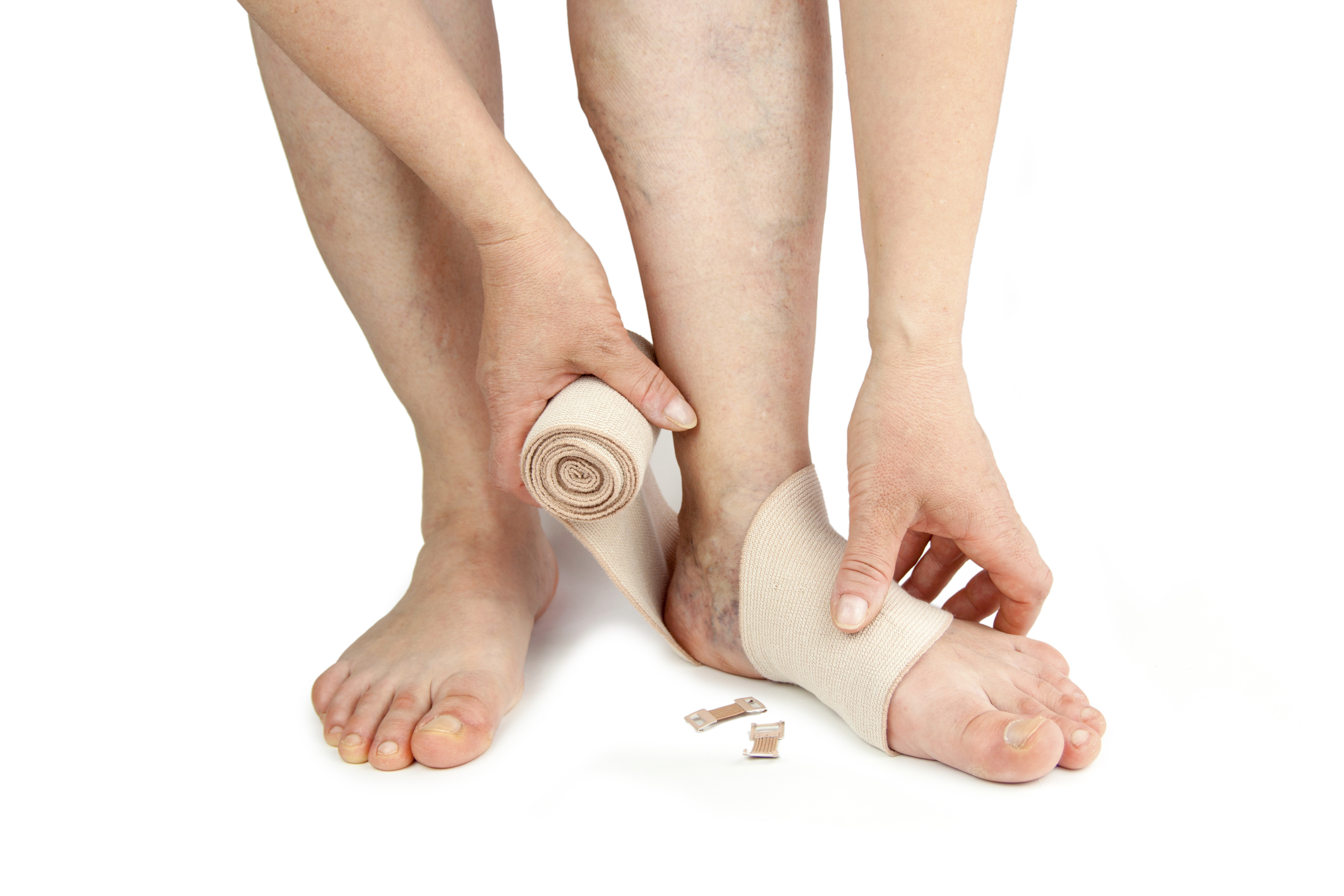 home remedies for edema, Skeleton