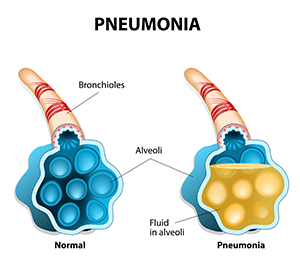 4 Signs Of Pneumonia You Should Never Ignore