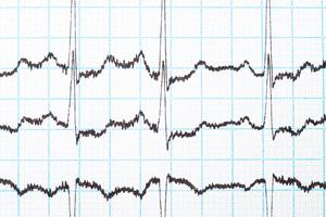 Does Urgent Care Offer EKG Screening