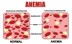 Do You Need An Anemia Test