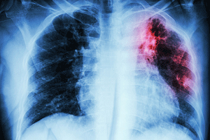 What Are The Symptoms Of Tuberculosis