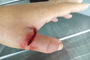 Common Signs Your Cut Needs Stitches