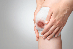 Types Of Wound Drainage And How To Tell When It Is Serious