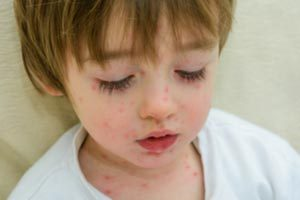 What Are The Side Effects Of The Chicken Pox Vaccine