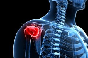 The Most Common Causes Of Rotator Cuff Injuries