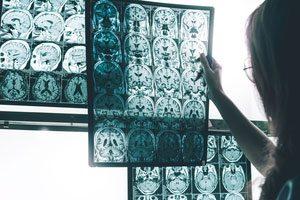 Lowering Your Risk for Alzheimer's